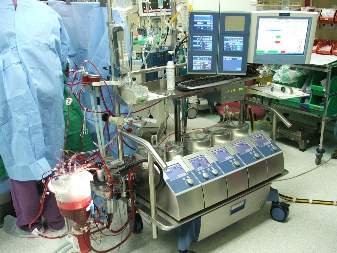 чаще картинки аппарата искусственного кровообращения под