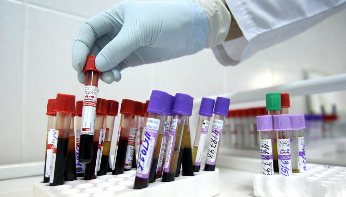 У 231 тамбовчанина обнаружили ВИЧ, фото-1