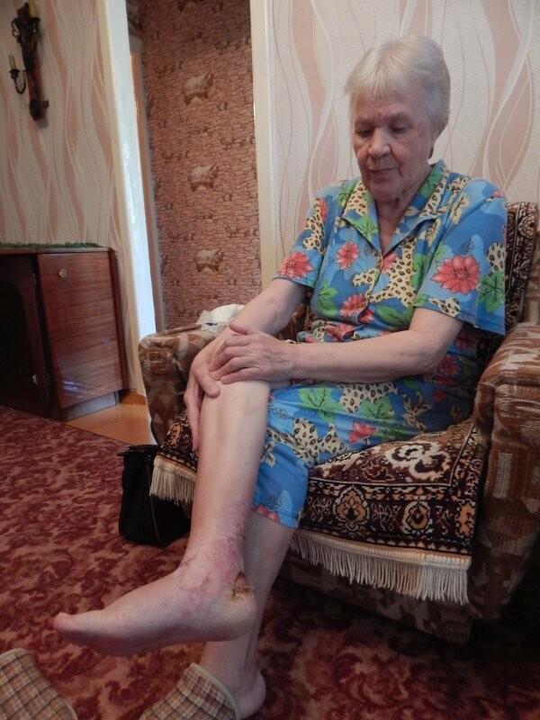 Тамбовчанка Валентина Глушкова: «Водитель чуть не оторвал мне ногу», фото-1